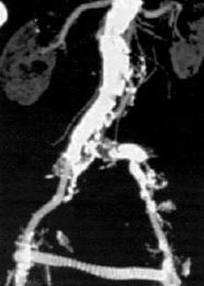 stent műtét
